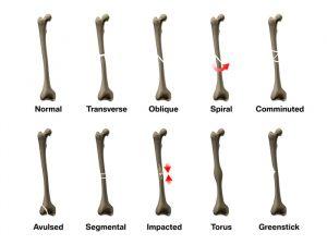 Broken bones and bone fractures